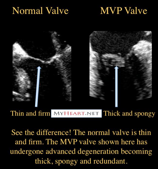 Myxomatous degeneration of mitral valve prolapse