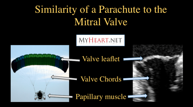 Mitral Valve is Similar to a Parchute