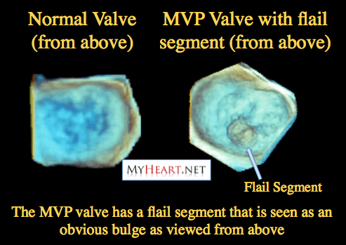 Flail leaflet in mitral valve prolapse