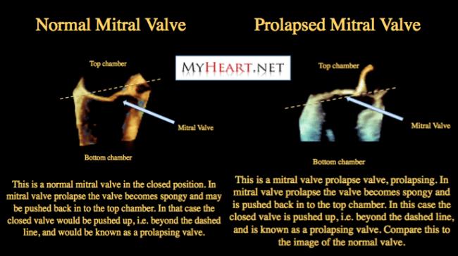 Mitral Valve Prolapse