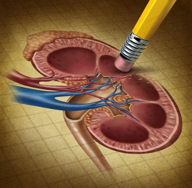 Understanding Kidney Disease