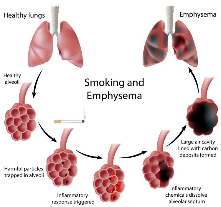 What Is COPD? An Overview of COPD MyHeart