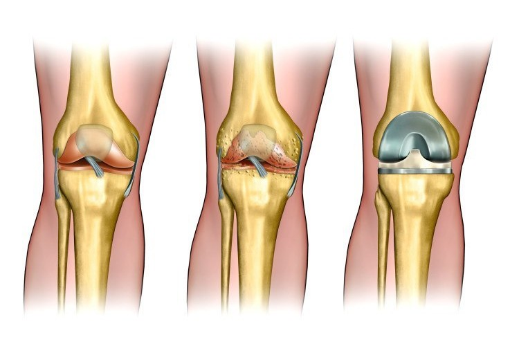 Do I Need A Knee Replacement