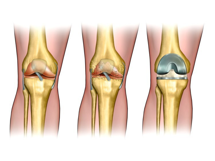 Do I Need a Knee Replacement?  – Advice for a patients