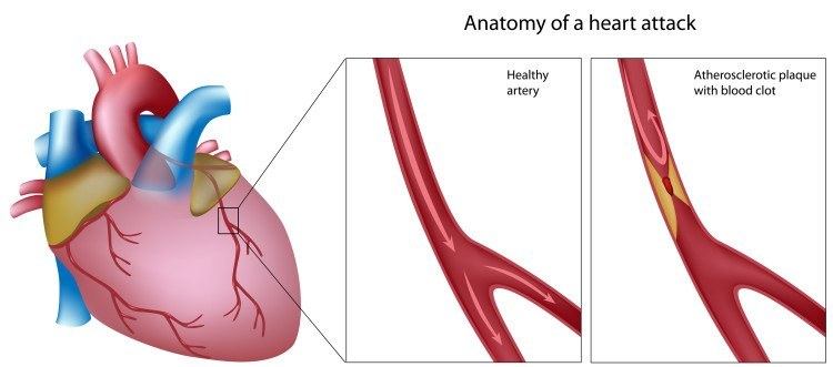 Acute Coronary Syndrome – Explained By A Cardiologist