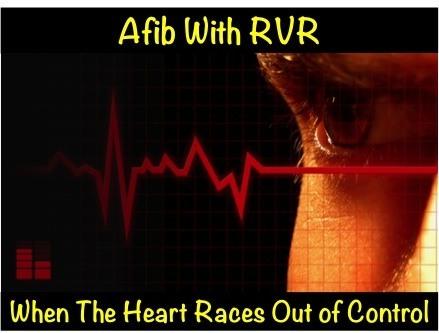 Afib with RVR