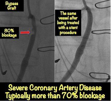 Severe Heart Blockage