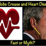 Earlobe Crease And Heart Disease – Fact Or Myth?