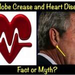 Earlobe Crease And Heart Disease – Fact Or Myth?