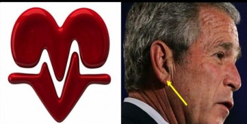 Earlobe Crease & Heart Disease: Fact or Myth? • MyHeart