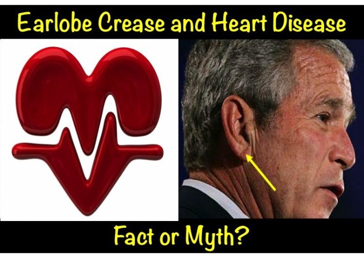 Earlobe Crease And Heart Disease