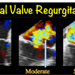 Mitral Valve Regurgitation (Mitral Insufficiency)