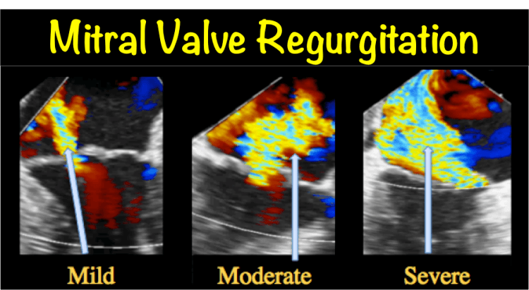 Mitral Valve regurgitation mitral insufficiency