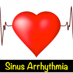 Sinus Arrhythmia – What Is It?