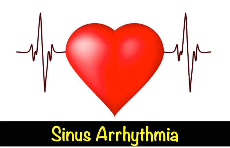 Sinus Arrhythmia – What Is It?