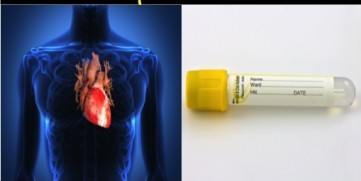 Troponin Levels – The Heart Attack Blood Test