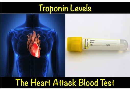 Troponin Levels – The Heart Attack Blood Test myheart net