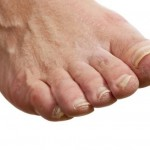 Itchy Feet – Causes and Cures