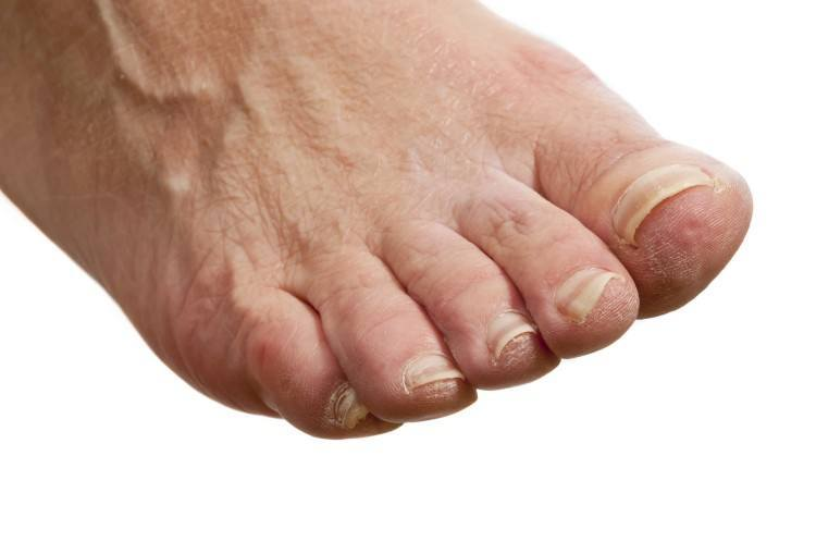 Itchy Feet Causes and Cures