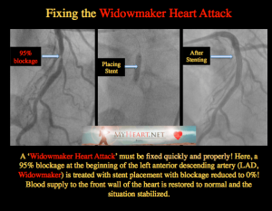 WIDOWMAKER BEFORE AFTER STENT LAD