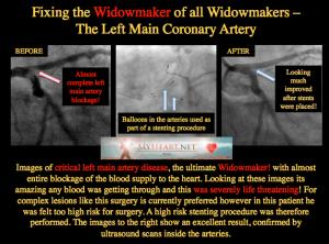 WIDOWMAKER LEFT MAIN STENT