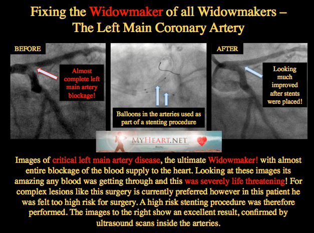 WIDOWMAKER LEFT MAIN STENT