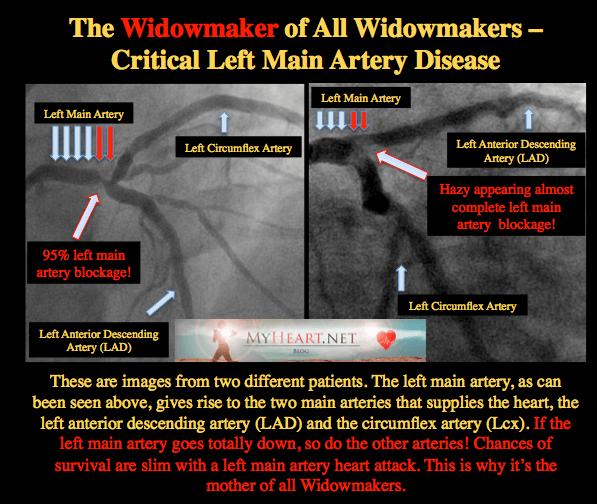 WIDOWMAKER LEFT MAIN