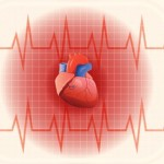 Coronary Artery Disease Overview