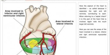 A Guide to STEMI (ST-elevation Myocardial Infarction) Heart Attacks