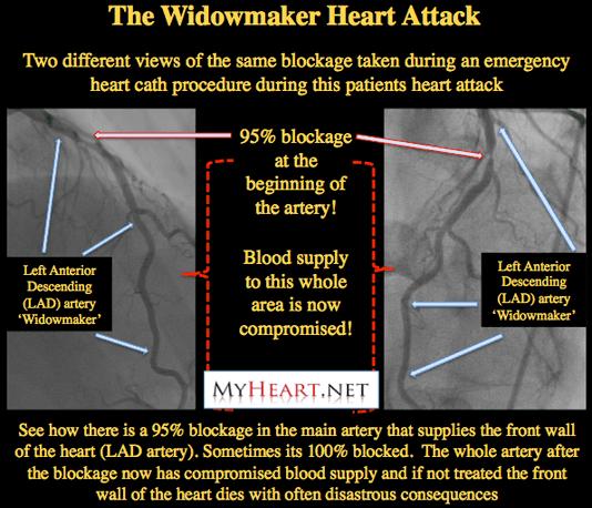 Widow Maker Heart Attack