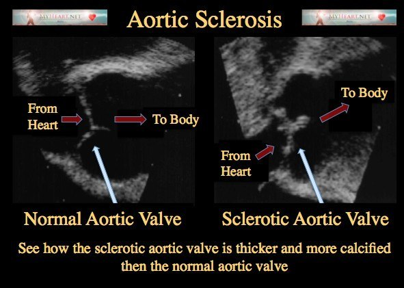 Aortic Sclerosis Diagnosis, Treatments, & Risk Factors