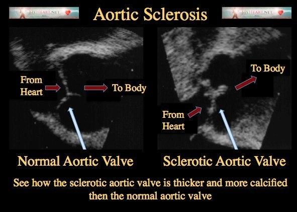 aortic-sclerosis.jpg