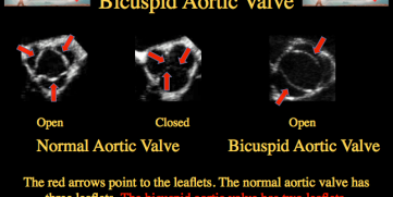 Bicuspid Aortic Valve – All You Need To Know