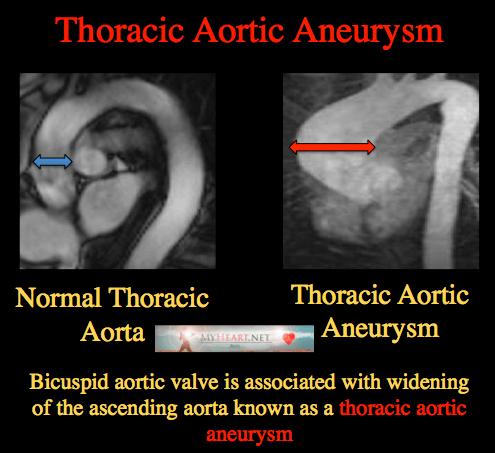 LAD artery