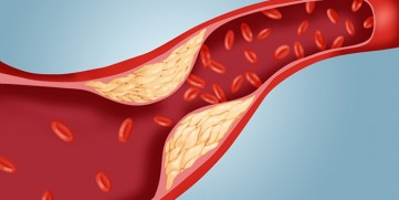 High Blood Cholesterol – What Do the New Guidelines Say?