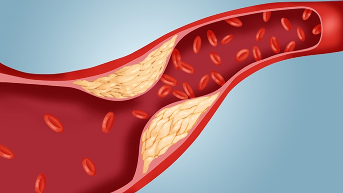 the fat deposition at the blood vessel wall, reducing the blood flow to the entire body Hypercholesterolemia