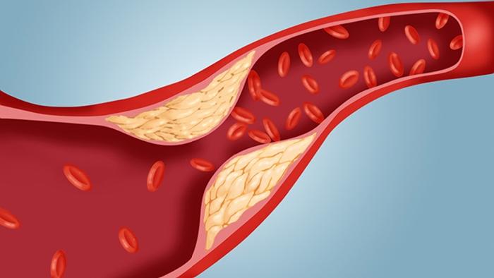 Cholesterol Guildeilnes