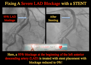 The LAD Artery