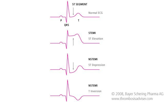 NSTEMI Illustration