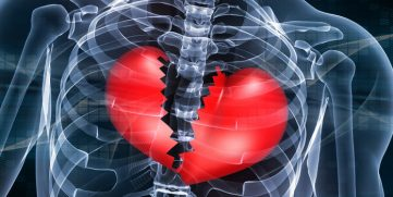 Heart Pain – FAQ's Answered By A Cardiologist