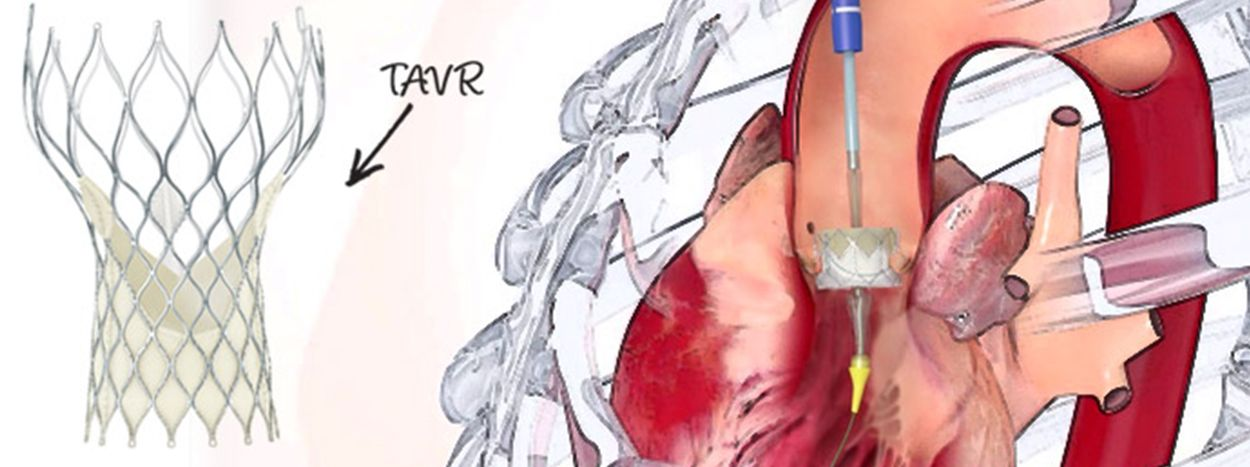 TAVR (Transcatheter Aortic Valve Replacement): The New Heart Valve Replacing Open Heart Surgery
