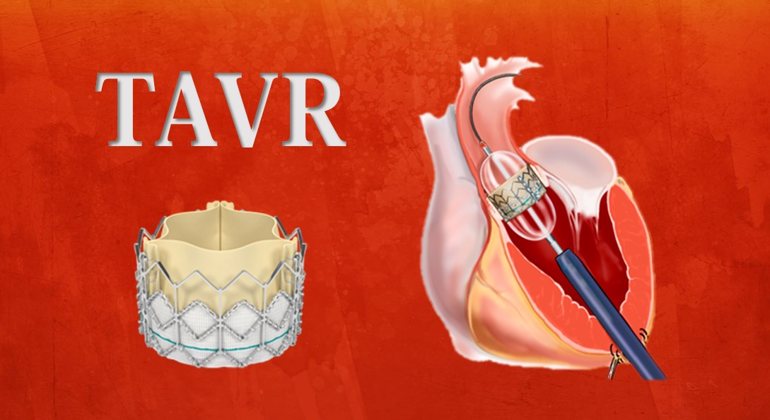 trans-catheter-aortic-valve-replacement