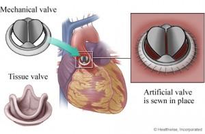 Mechanical vs Tissue Valve Replacement