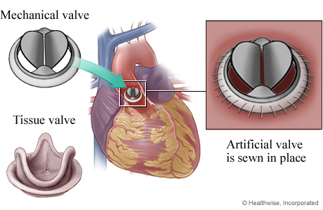 heart valve transplant Some types of congenital heart valve disease are so severe that the valve is  repaired or replaced during infancy, childhood, or even before birth other types.