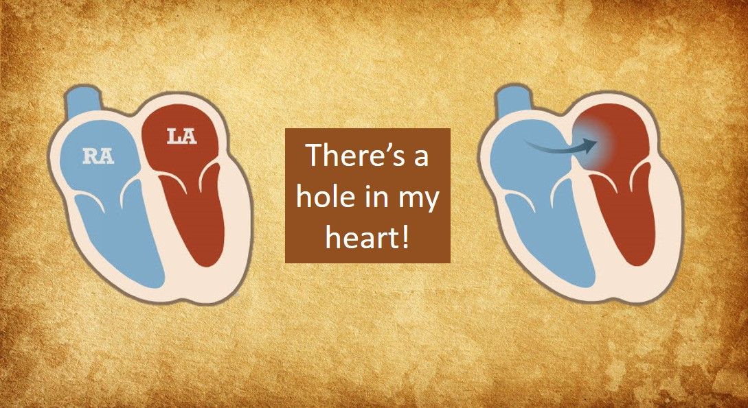 PFO - Patient's Guide to Holes in the Heart - MyHeart