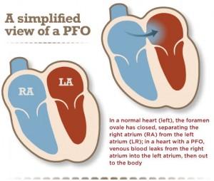 PFO - Hole in the Heart