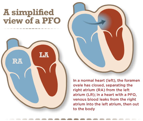 PFO - Hole in the Heart