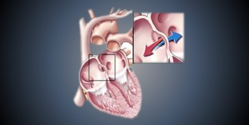 Atrial Septal Defect – Everything You'll Ever Need to Know