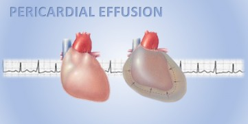 Pericardial Effusion, aka Fluid Around The Heart