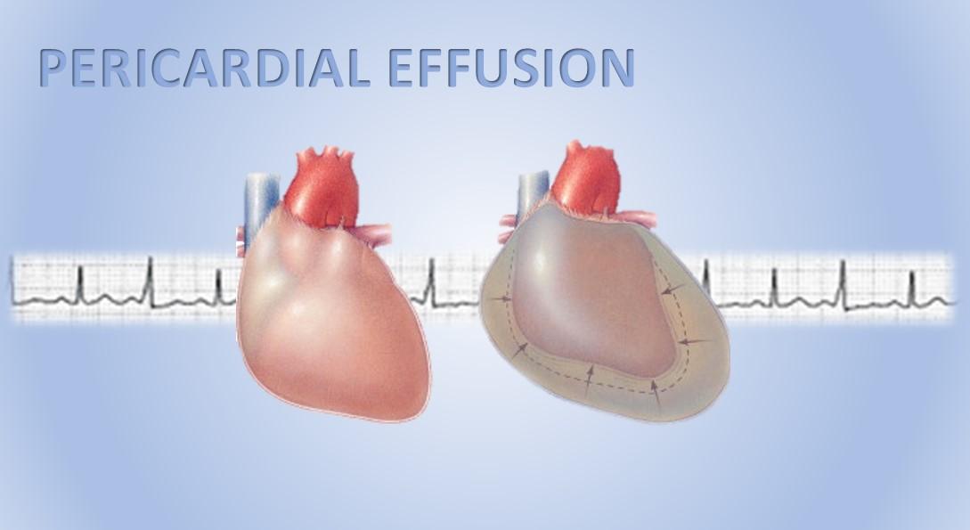 pericardial-effusion